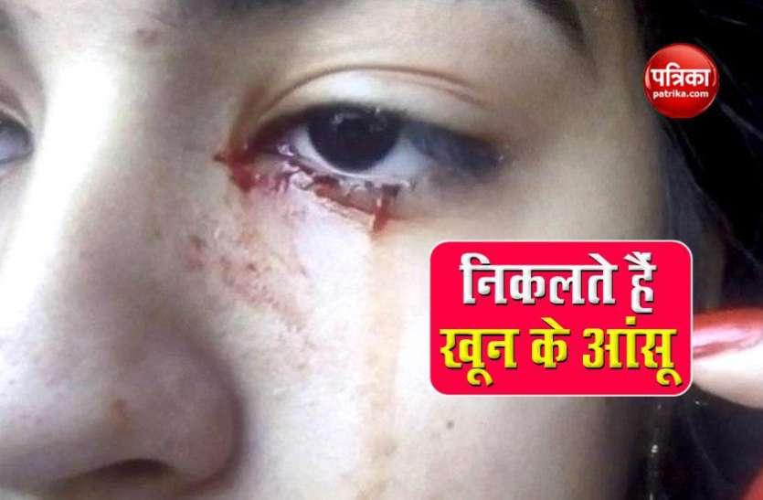 अजीबोगरीब बीमारी से जुझ रही है ये लड़की, खून के आंसू देख डॉक्टर्स भी रह गए दंग