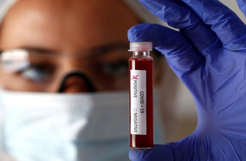 Corona Update : संक्रमण की रफ्तार में आई कमी, आज सामने आए 271 नए पॉजिटिव, 6 की मौत