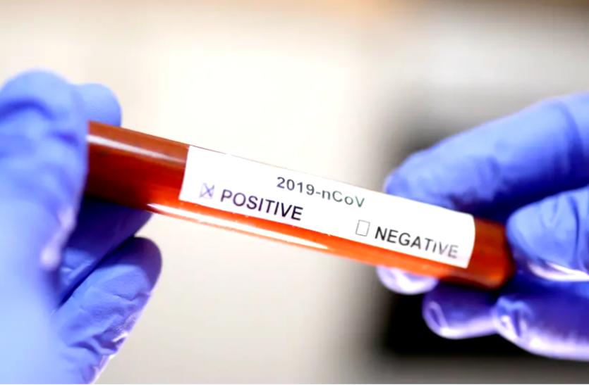 Corona Update : तेजी से आ रहा सुधार, 24 घंटे में सामने आए 148 नए संक्रमित, 679 की मौत