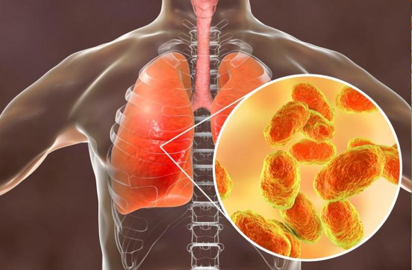 इनफ्लुएंजा के संक्रमण से बैक्टीरियल निमोनिया का खतरा बढ़ सकता है