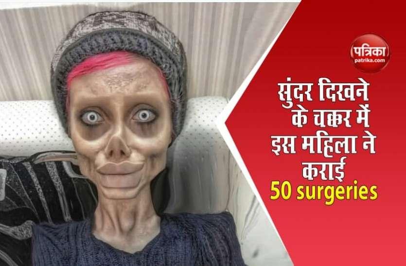 एक्ट्रेस Angelina Jolie जैसी दिखने की चाहत में इस महिला ने कराई 50 surgeries, हुआ ऐसा हाल