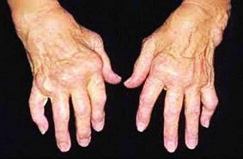 फ्लोरोसिस रोग की रोकथाम संभव