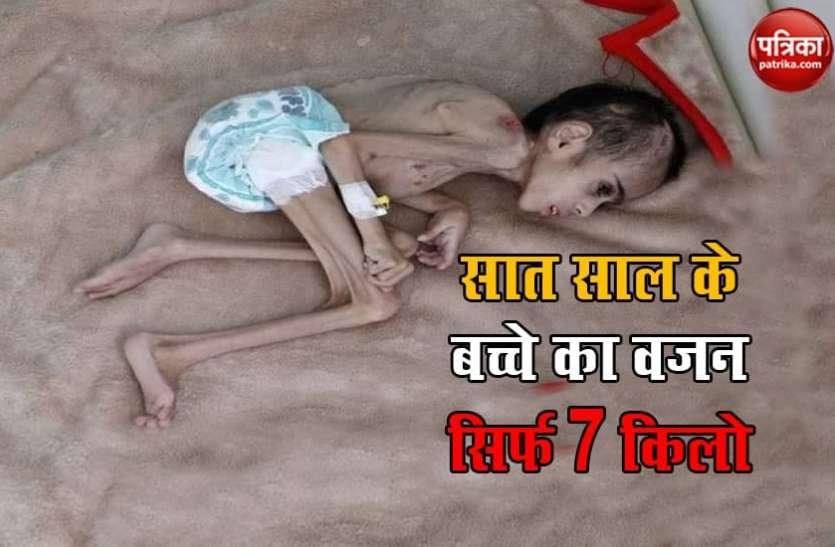 सात साल के बच्चे का सिर्फ 7 किलो का वजन, इसकी बीमारी जानकर आप हो जाएंगे दंग