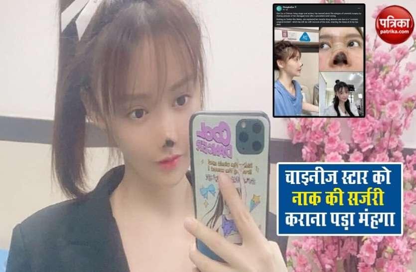 खूबसूरत बनने के चक्कर में चाइनीज स्टार Gao Liu ने कराई नाक की सर्जरी, हुआ ऐसा हाल
