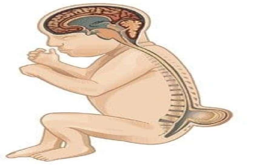 हमेशा की विकलांगता का कारण बन सकता है spina bifida