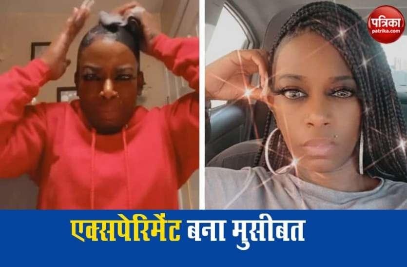 ग्लू स्प्रे लगाकर बालों को सेट करना महिला को पड़ा महंगा, खाल में चिपक गए हेयर्स