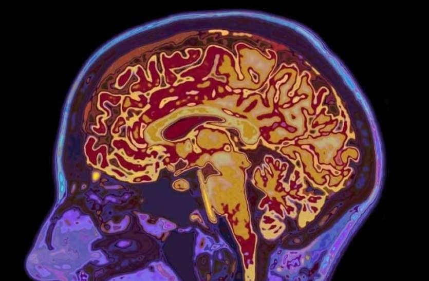 जर्मनी की यूनिवर्सिटी का शोध, देश में भी दिख रहे न्यूरोजिकल लक्षण, दिमाग में घुस सकता है कोरोना