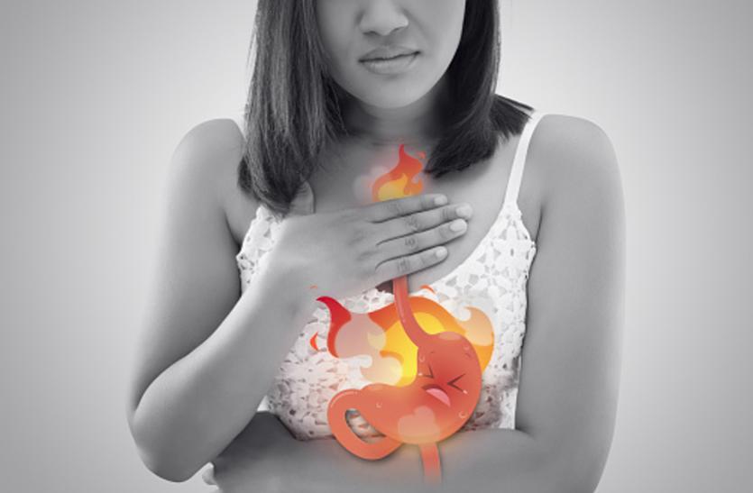 Acidity and irritation : एसिडिटी और जलन के कारण हो गए हैं परेशान तो अब अपनाएं ये घरेलू नुस्खे