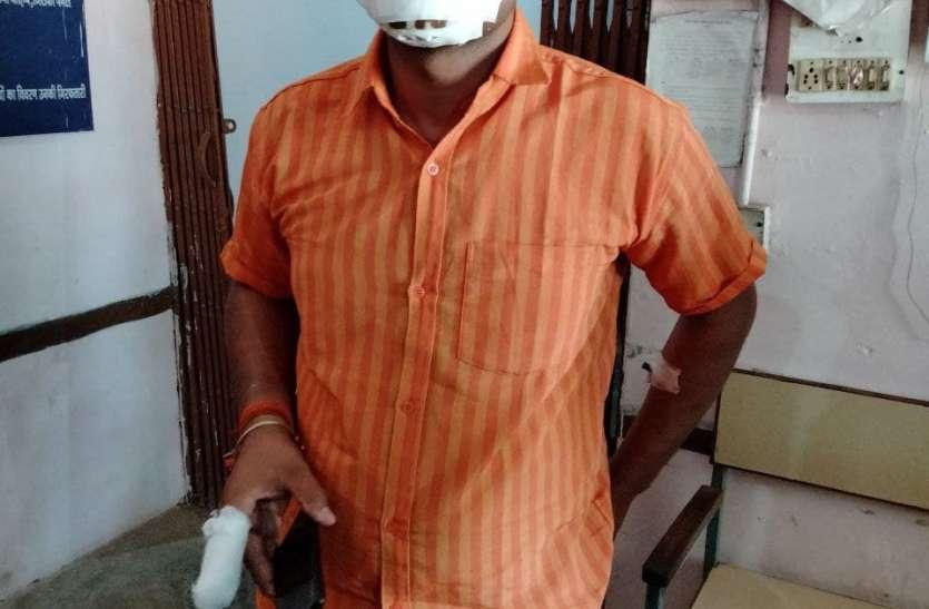कबाड़ माफियाओं ने पुलिस टीम पर किया हमला, थाना प्रभारी सहित दो आरक्षक गंभीर रूप से घायल
