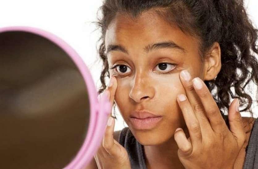 Fairness Tips :- चेहरे का सांवलापन दूर करने के लिए अपनाएं यह घरेलू उपाय