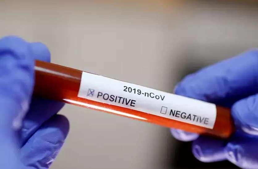 प्रदेश को मिली कुछ राहत, 14,289 नए कोरोना संक्रमित मिले, 155 की मौत
