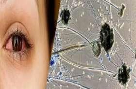 रीवा में Black fungus का कहर, संक्रमितों में युवा ज्यादा
