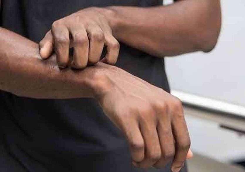 सावधान: ब्लैक फंगस से 10 गुना अधिक घातक है वाइट फंगस