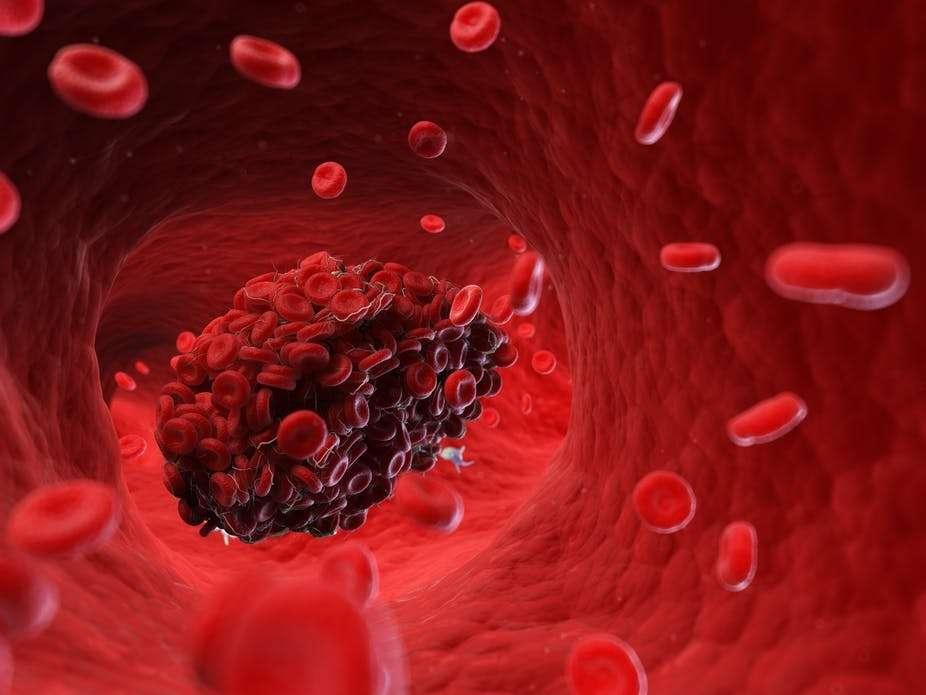 बिना लक्षण के कोरोना मरीज़ों के लिए है डी-डाइमर टेस्ट