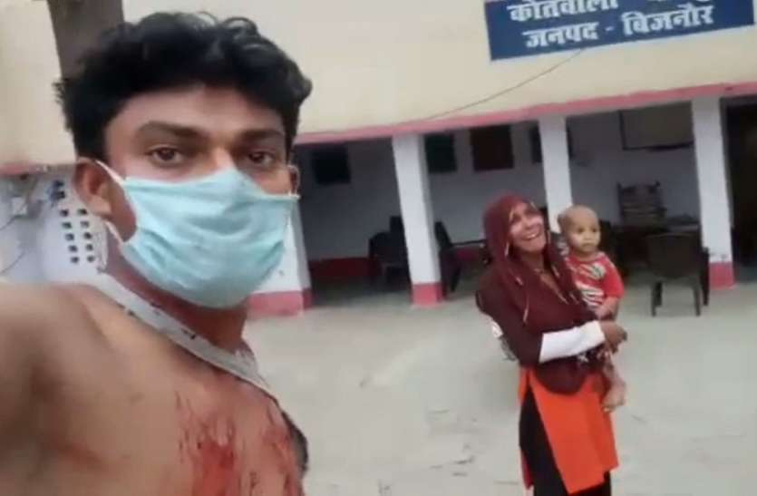 घायल युवक ने पुलिस चौकी से पत्नी के साथ वीडियो वायरल करके सिस्टम पर लगाए आरोप