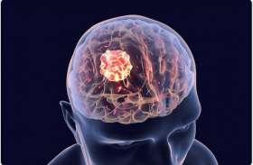 World brain tumor day तेज दर्द के साथ नींद खुलना हाे सकता है ब्रेन ट्यूमर का संकेत, देखें वीडियो