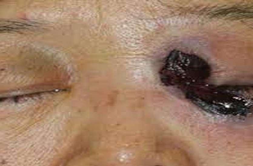 म्यूकोरमाइकोसिस से दो और मौत, 14 ऑपरेशन, निकालनी पड़ी एक की आंख