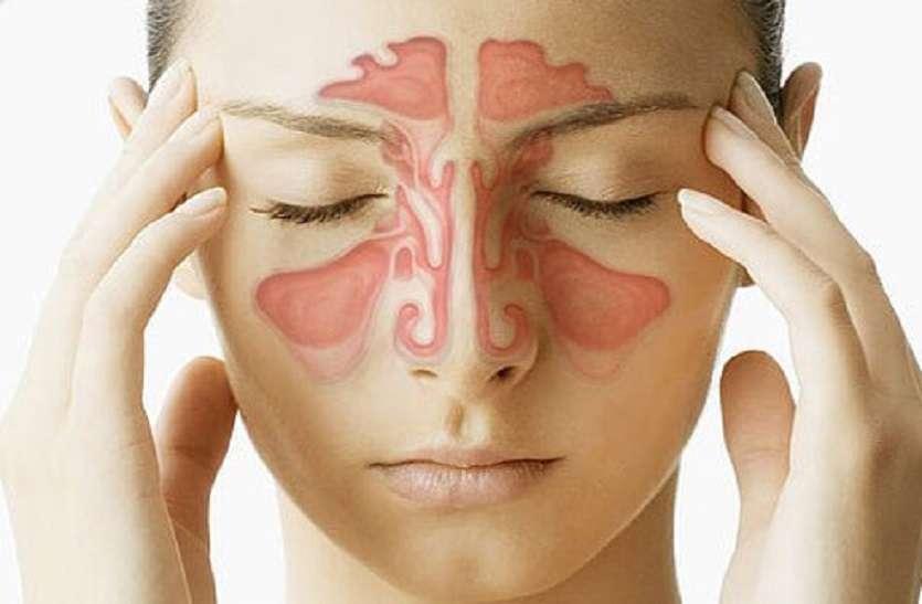साइनस और एलर्जी में गले के अंदर रिसाव होता, इससे गला खराब रहता