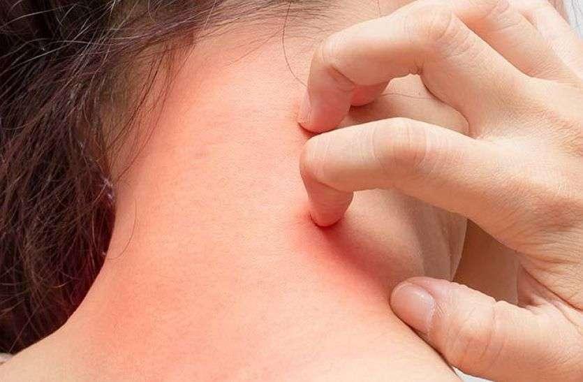 Eczema Home Remedies :- एक्जिमा से हो गए हैं परेशान तो अब करें यह घरेलू उपाय