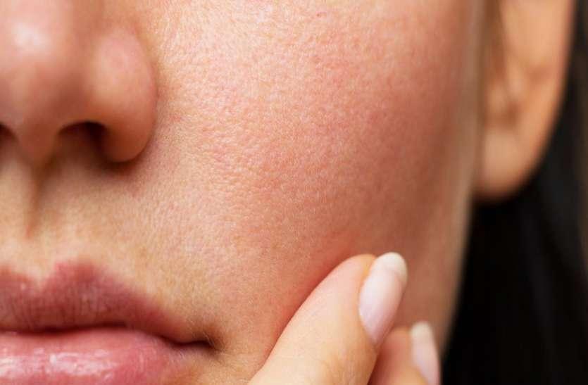स्वस्थ और जवां त्वचा के लिए डिटॉक्सीफाई जरूरी, जानें कैसे करें