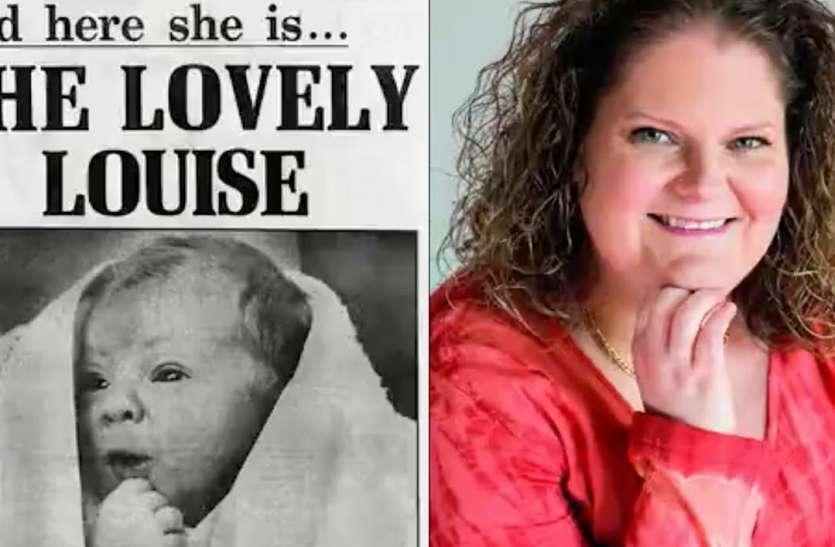 25 जुलाई: वर्ल्ड एम्ब्रायोलॉजिस्ट डे- दुनिया की पहली टेस्ट ट्यूब बेबी हैं लुइस