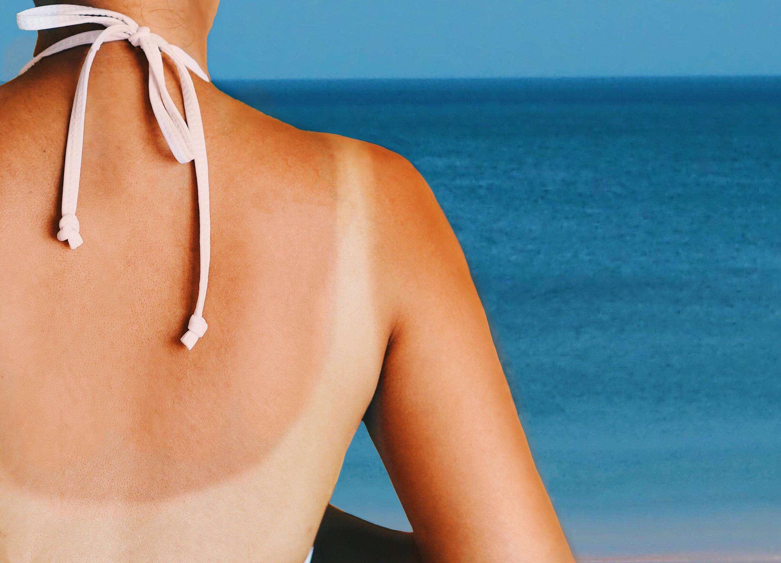 sunburn_home_remedy_1.jpg