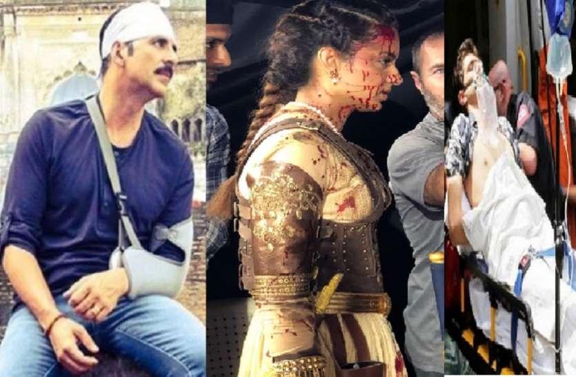 शूटिंग के दौरान इन 6 सितारों को लगी भंयकर चोट, कोई जल गया तो किसी की जान जाते-जाते बची