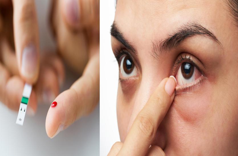 Diabetes: डायबिटीज के कारण भी हो सकती हैं आंखों से जुड़ी हुई ये समस्याएं जिनके बारे में आपको भी जानना चाहिए