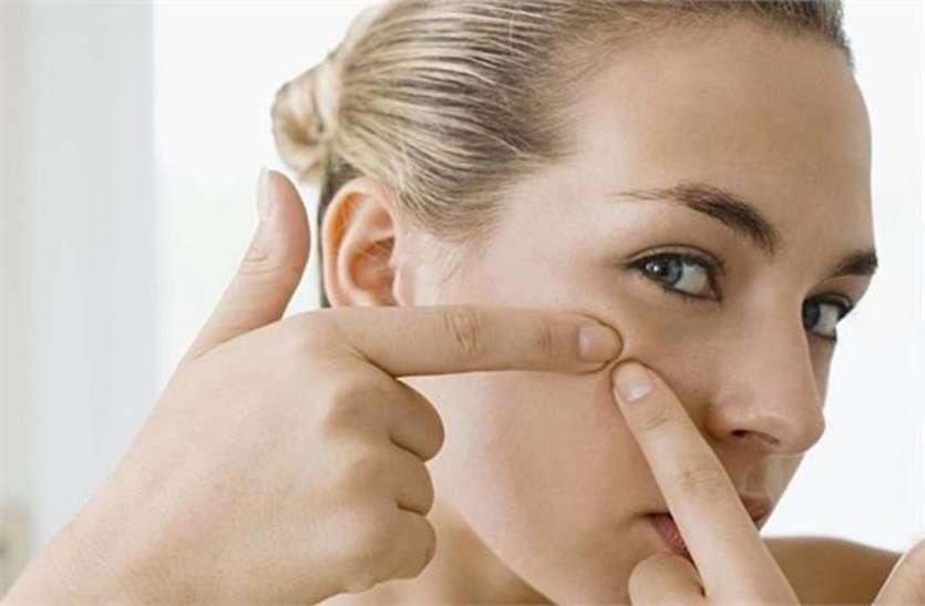 Beauty Tips: पिंपल्स को बार-बार छूना पड़ सकता है भारी, जानें कैसे करें बचाव