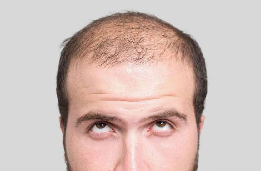 Natural Way to Reduce Hair Fall: बाल झड़ने से रोकने के लिए आजमाएं ये 5 प्राकृतिक उपाय, गंजेपन से मिलेगा छुटकारा
