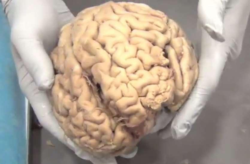 World Alzheimer's Day 2021: ब्रेन के लिए बेहद खराब होते हैं ये पांच फूड, आज से ही कम कर दें खाना
