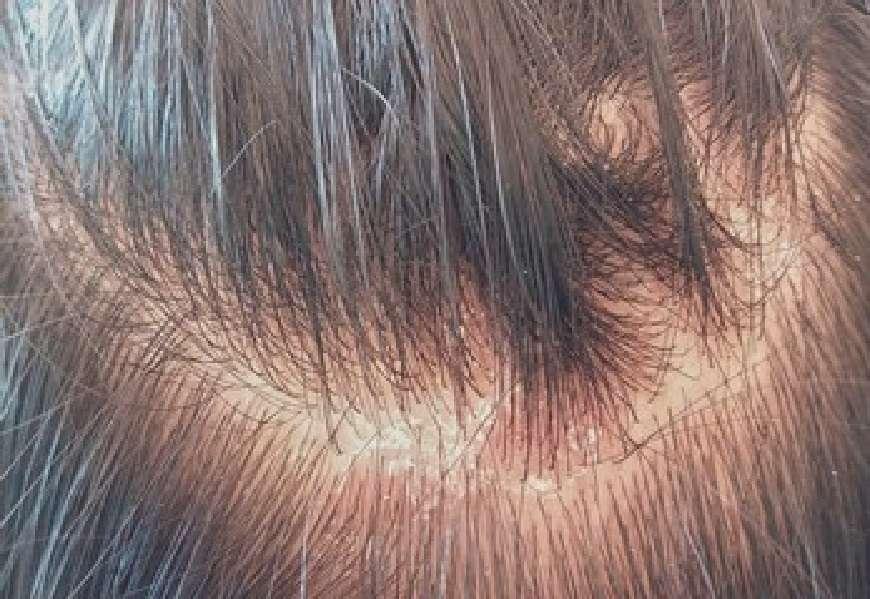 Hair Care Tips : अगर आप गंजेपन का शिकार हो रहे है तो इन तरीको को अपनाकर इससे बच सकते है