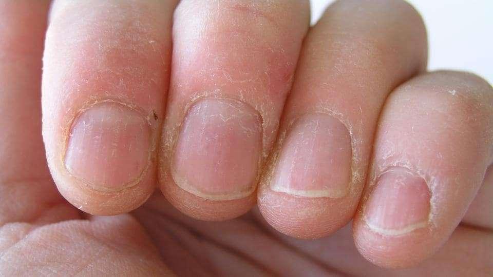 bad_nails.jpg