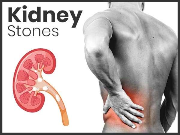 kidney_stone.jpg