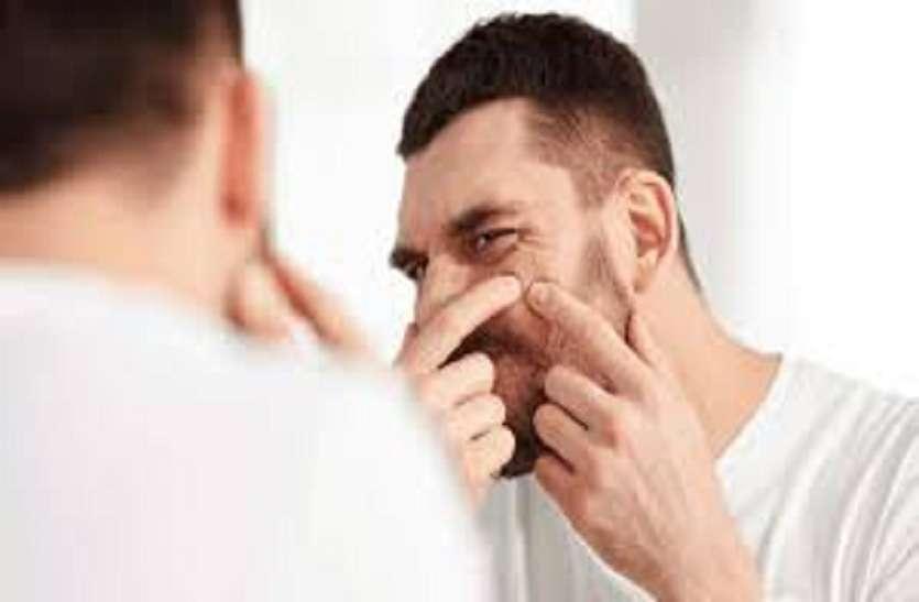 Skin care tips : पिंपल्स होने के क्या हैं कारण