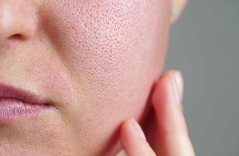 Skin Care Tips: चेहरे के ओपन पोर्स से आपको छुटकारा दिलाएगा ये 5 घरेलू उपाय