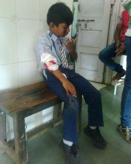 सड़क पर बाइक से फिसले लापरवाह स्कूली छात्र