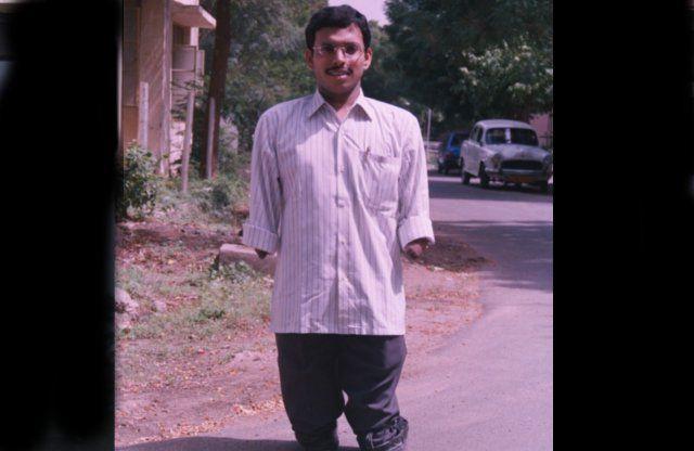 बचपन में खो दिए थे हाथ और पैर,आज कमा रहा लाखों रुपए