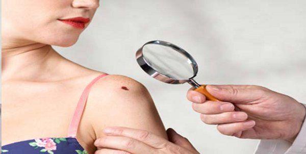 Astrology: Mole on woman body - Bhopal News in Hindi - ASTROLOGY
