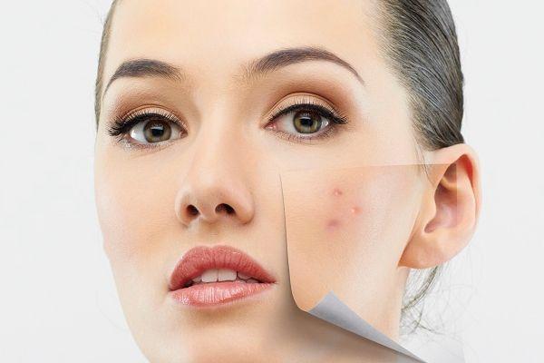 Home Remedies To Get Rid Of Pimples - ये घरेलू नुस्खे दिलाएंगे आपको पिम्पल्स  से छुटकारा | Patrika News