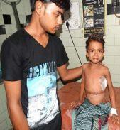 KGMU के डॉक्टरों ने बच्चे की किडनी से निकाला ढाई किलो का ट्यूमर