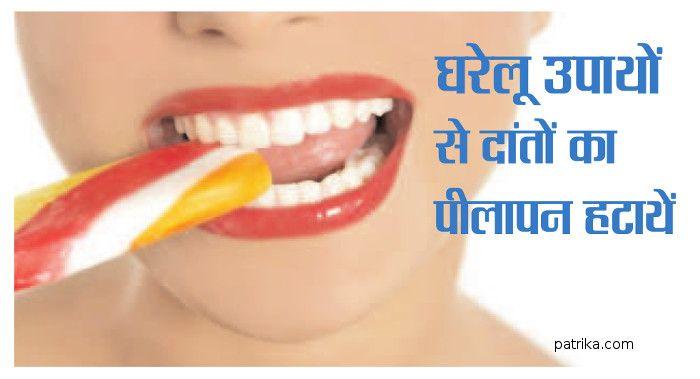 Home Tips For Clean Teeth Jabalpur News In Hindi ड टल