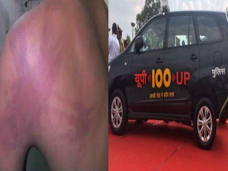 ये है सीएम अखिलेश की 100 नम्बर योजना, कॉल करने पर पुलिस ने युवक को बेल्ट से पीटा