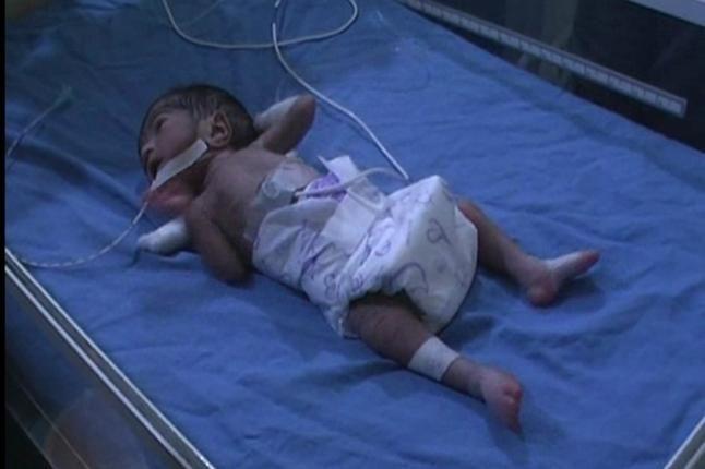 चमत्कारः 6.5 महीने में पैदा हुआ 700 ग्राम का बच्चा, डॉक्टरों ने ऐसे बचाई जान