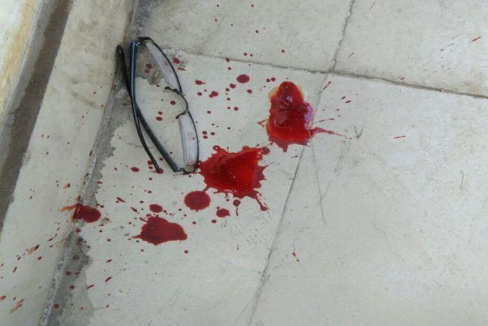 पॉश इलाके में सहम गए लोग, जब शूटरों ने ऑफिस में की फायरिंग, मैनेजर घायल