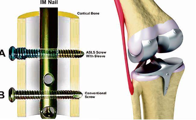 रिम्स में हड्डी उपकरणों के नाम पर मरीजों से हो रही अवैध वसूली