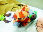 गरीबी बनी अभिशाप, मां गुजर गई...बच्चा लड़ रहा कुपोषण से जंग