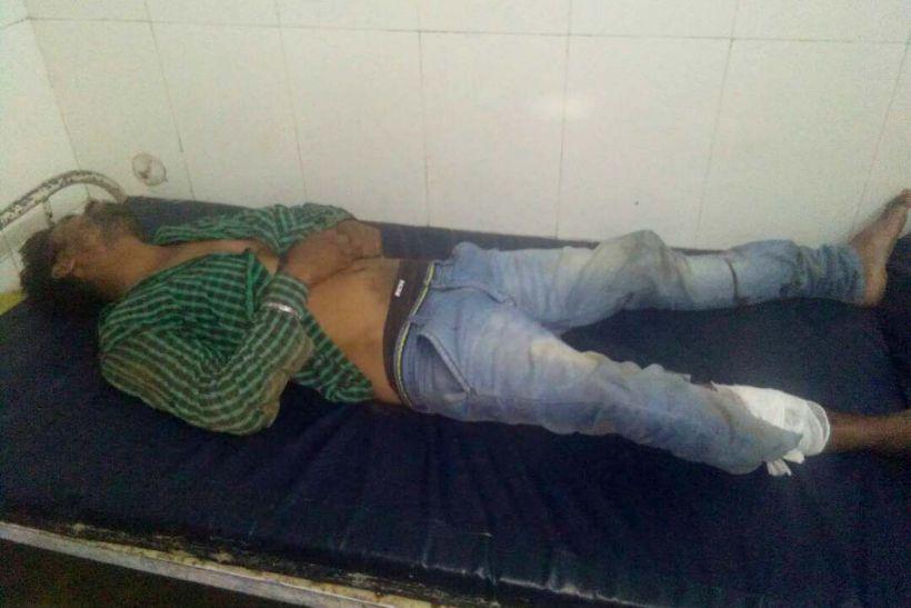 अपहरण कर की युवक से मारपीट, छूटकर भागा तो पैर में मारी गोली