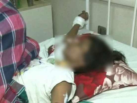 बेटी बनाकर किया शोषण, सिगरेट से दागा शरीर, पीड़ा सुन उड़े पुलिस के होश