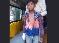 चार्जिंग में लगे मोबाइल की बैटरी फटी, बच्चे की अंगुलियों के उड़ गए चिथड़े
